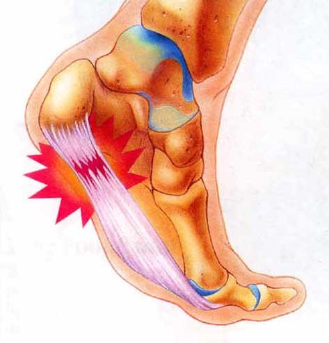 Heel Pain Treatment Singapore & Heel Pain Causes | Plantar ...