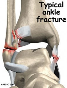 how to tell if your broken your ankle