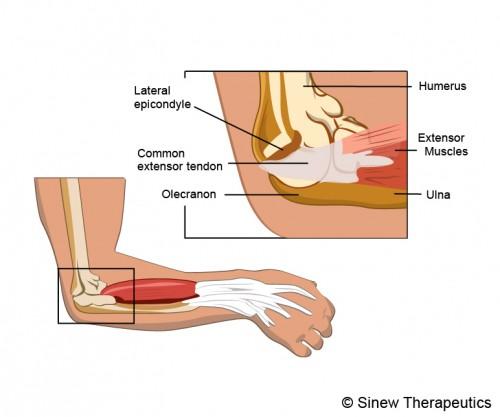 elbow hyperextension essay