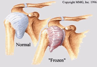 frozen-shoulder - Singapore Sports and Orthopaedic Clinic