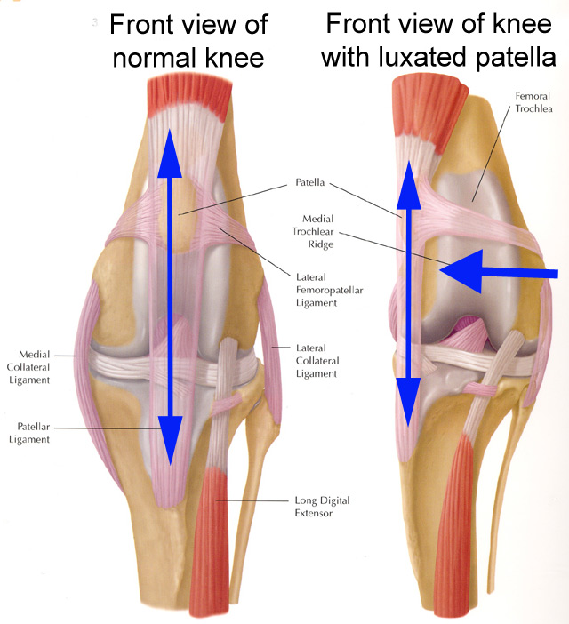 how to know if you hyperextended your knee