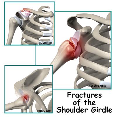 Shoulder Fractures (Broken Shoulder) Treatment, Symptoms ...