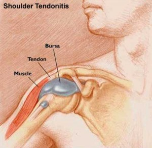shoulder & calcific tendinitis treatment & symptoms, Human body