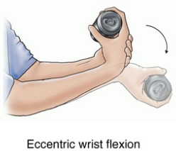 Tennis Elbow Exercise - Singapore Sports and Orthopaedic ...