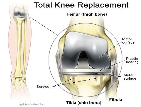 Total Knee Replacement Singapore Sports And Orthopaedic