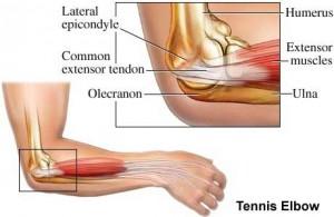 Tennis Elbow Lateral Epicondylitis Treatment Symptoms